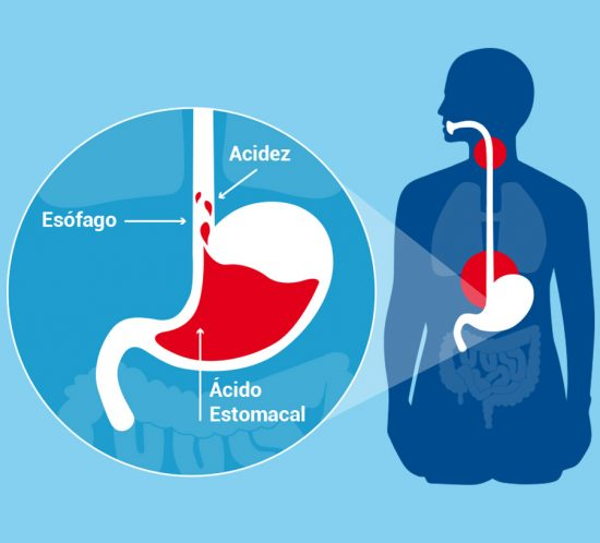 Infographic about heartburn
